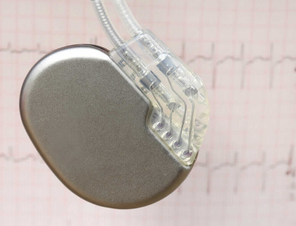 pacemaker_medical_device