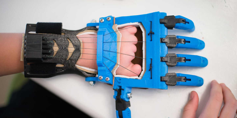 3D_printed_prosthetics