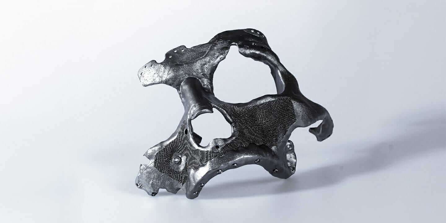 3D-printed titanium cranium CEIT Biomedical Engineering