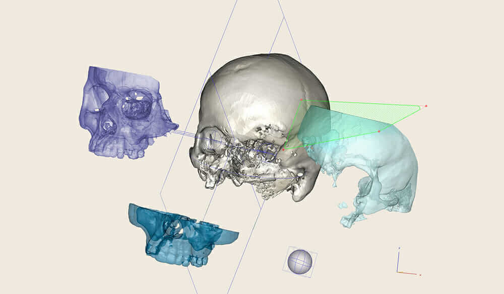 3d-printed titanium CEIT cranial implant