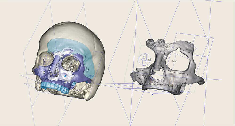 3d-printed titanium CEIT cranial implant scan