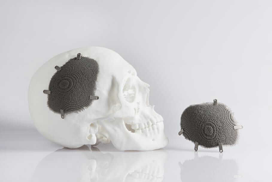 3d-printed titanium Novax DMA cranial implant