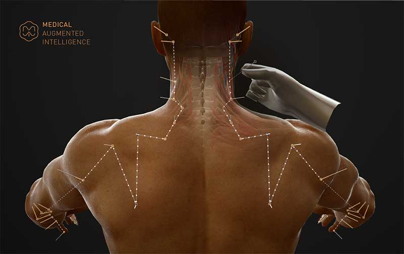 A 3D model of acupuncture points