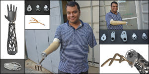 Meet the Prosthetics Startup Aiding Amputees in Rural India With Helping Hands