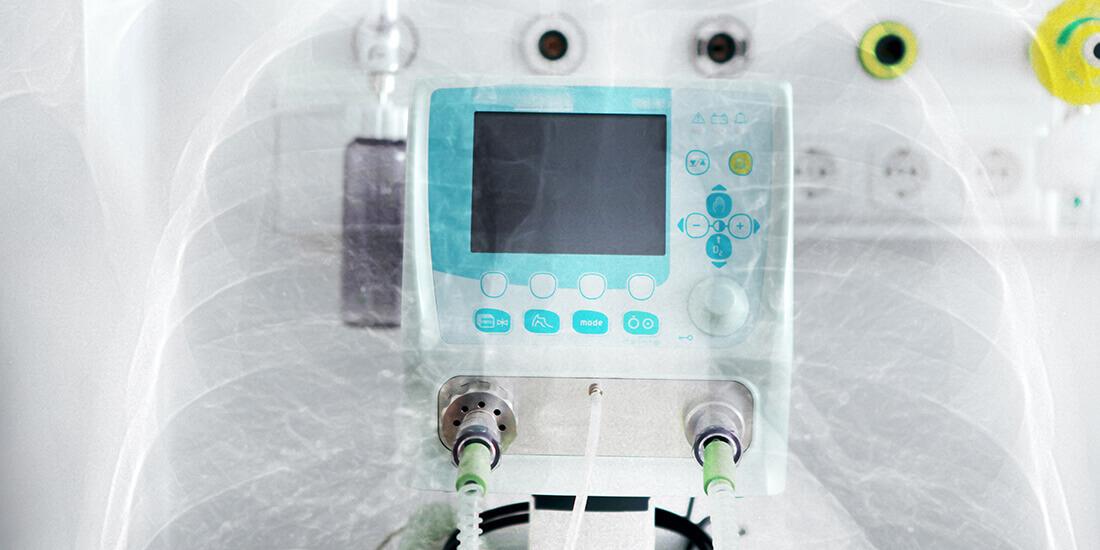 Empresa tecnológica melhora os resultados de pacientes com COVID-19