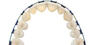 形状記憶合金がもたらす従来の歯科矯正術からの別離