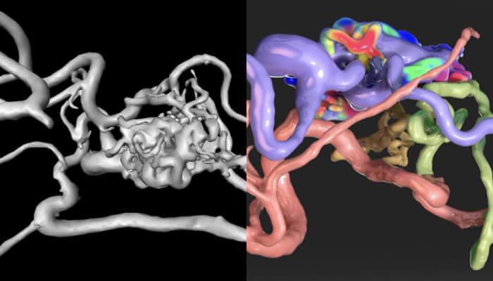 未来 医療 脳 画像