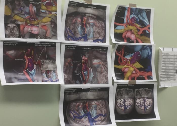 医療 未来 3D CG 手術