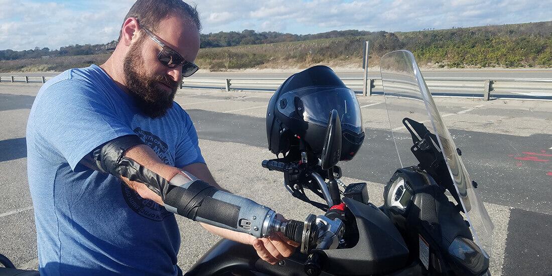 custom prosthetics