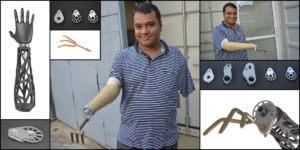 La empresa emergente protésica que les tiende una mano a los amputados de la India rural