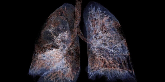 OnScale digital twin of lung image